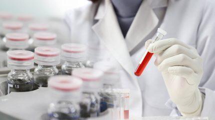 薬剤師資格を生かして研究職に転職するために必要な2つのポイント